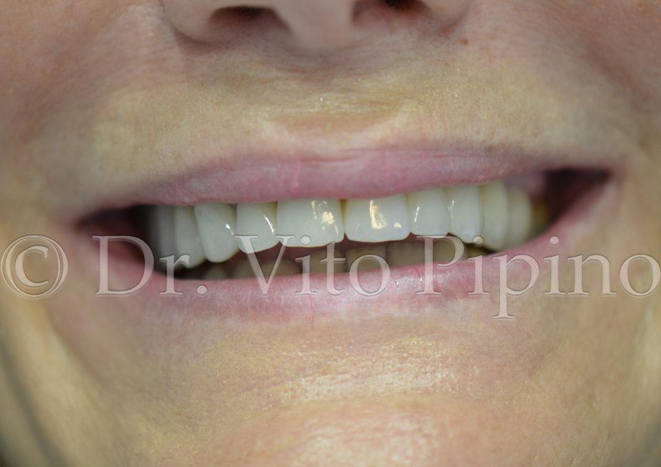riabilitazione corone dentali senza metallo